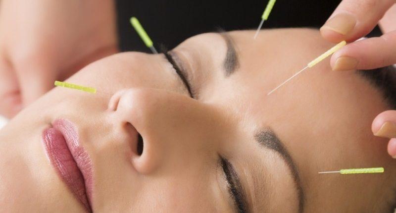curso de acupuntura en sevilla