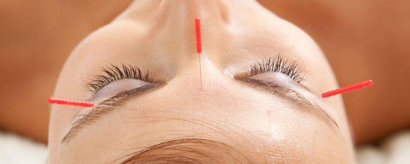 El quiromasaje en la estética. Aplicación de ventosas, acupuntura y la cosmética natural